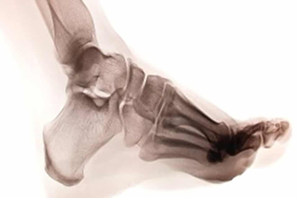 human foot ankel and leg xray picture